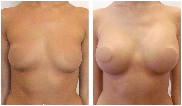 Как увеличить грудь упражнения гантели